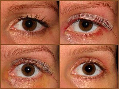 vochtophoping na ooglidcorrectie
